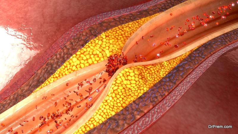 cholesterol clots